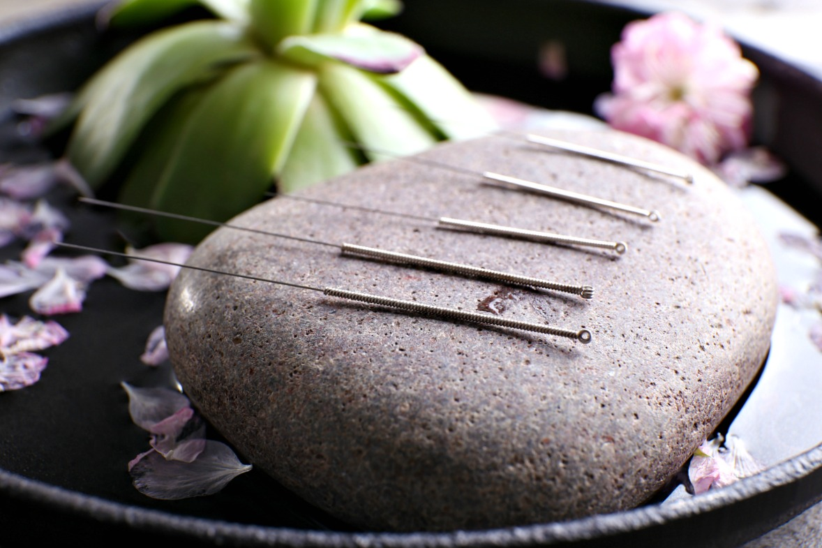 Are you curious what health benefits acupuncture can offer? The points of these thin needles are used for fertility, in pregnancy, for weight loss, for anxiety, for back pain, for headaches and more.